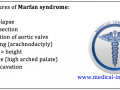 Systemic Features of Marfan syndrome Mnemonic - Medical Institution