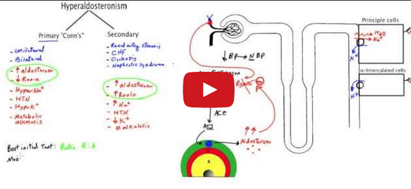 Conn's Syndrome - Primary Hyperaldosteronism Video lecture -Medical Institution