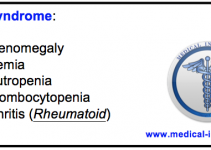Felty's syndome mnemonic-medical institution