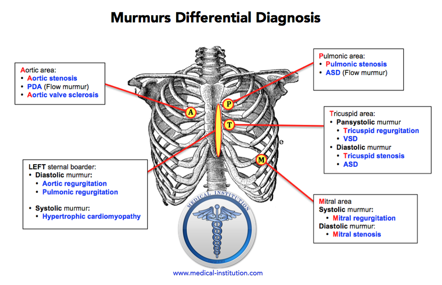 Heart Murmurs Differential Diagnosis - Medical Institution