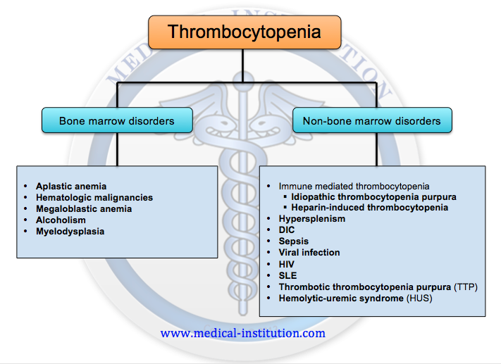 Thrombocytopenia Differential Diagnosis - Medical Institution