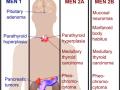 Multiple Endocrine Neoplasia Differential Diagnosis - Medical Institution