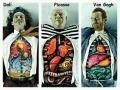 Dali, Picasso, Van Gogh Medical illustration - Funny Medical Pictures