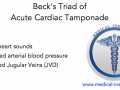 Becks triad of acute cardiac tamponade mnemonic