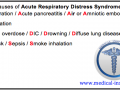 Common causes of Acute Respiratory Distress Syndrome Mnemonic  (ARSD)