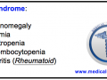 Felty's syndrome Mnemonic