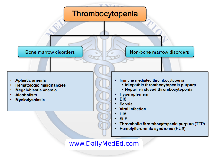 Thrombocytopenia Differential Diagnosis Www Dailymeded Com